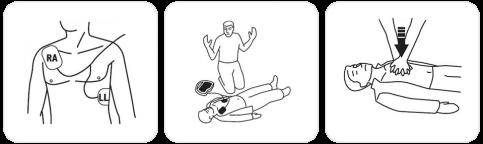 aed_defibrillatore_step_2_full